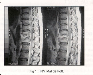 RMI of a Pott disease